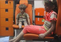 Brother of Omran, Syrian boy in haunting picture, dies of wounds