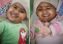 Separated Bangladeshi twin wakes up, looks 'fantastic'