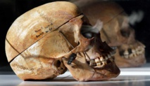 Human skulls from Africa investigated by international team in Berlin