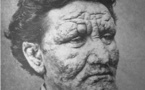 Leprosy: an ancient disease thrives in 21st century