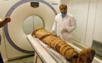 Ancient people also had clogged arteries, mummy scans show