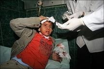 Israel warns of further escalation as Gaza death toll tops 880