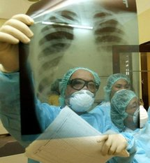 New lung cancer treatment shrinks some tumors: study