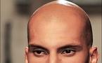 Gene link to rare cause of baldness